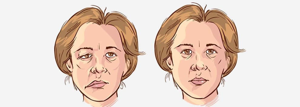 Facial palsy in pregnancy